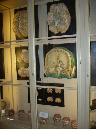 Anatomical%20Wax%20Museum%2C%20Bologna%20-%2003.jpg